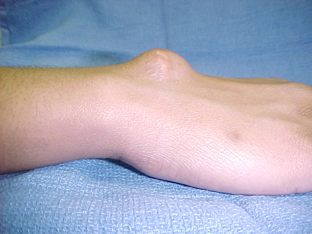 Ganglion Cyst Ankle Natural Treatment