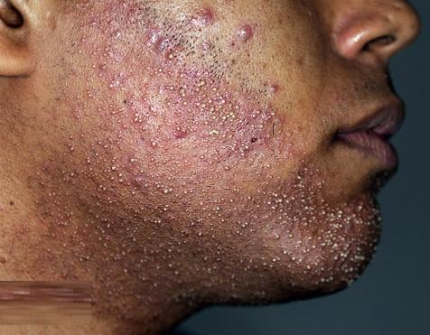 Folliculitis of Hair Follicles