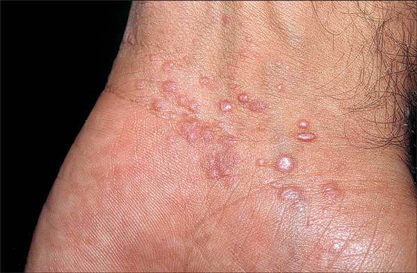 Medical Pictures Info Genital Follikulitis