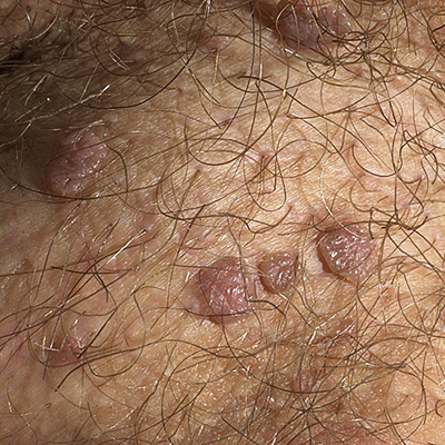 HPV - Genital Warts Pictures - Verywell
