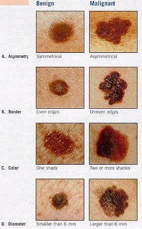 Image Gallery non malignant melanoma
