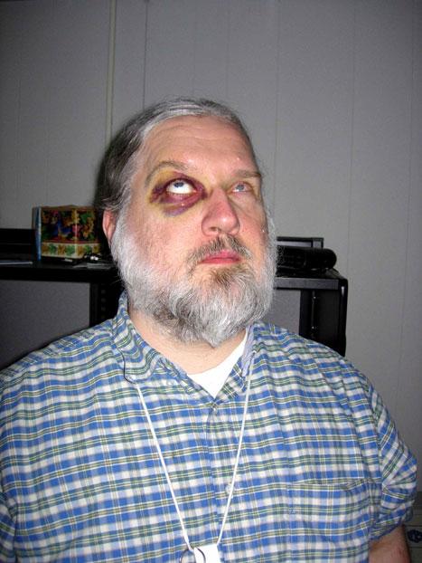 medical pictures info � black eye