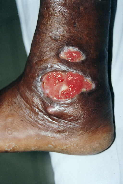 medical pictures info � blastomycosis