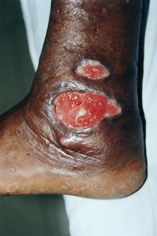Medical Pictures Info – Blastomycosis Lyme Disease Symptoms Rash