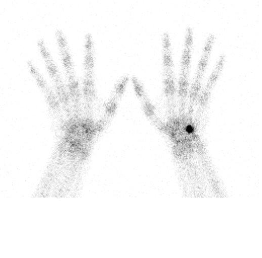 medical pictures info  u2013 bone scan
