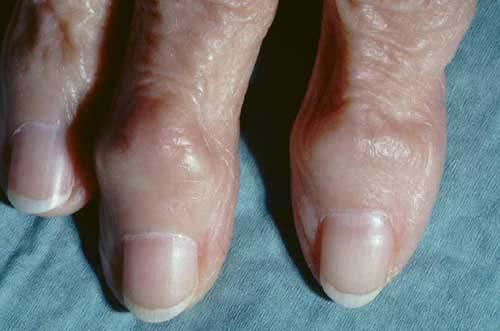 Heberden's Nodes On Finger Joints Pictures