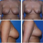 Breast Cellulitis