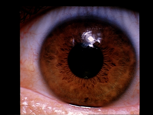 Medical Pictures Info ... Dermoid Cyst Eye