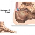Bursa Pain