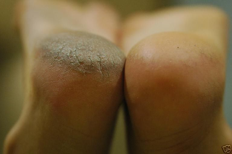 Painful callous on bottom of foot salope blonde