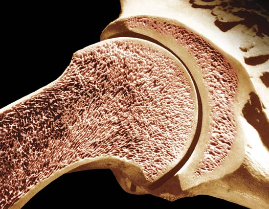 Medical Pictures Info  U2013 Cancellous Bone