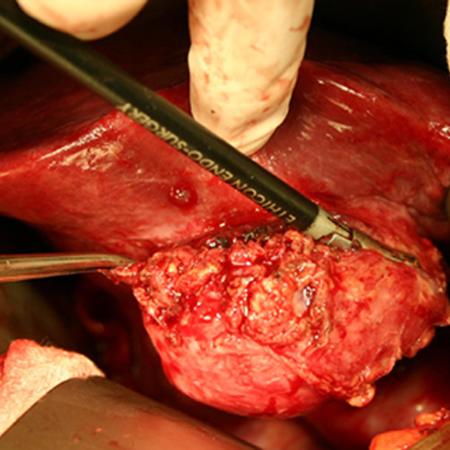 Ovary Pain