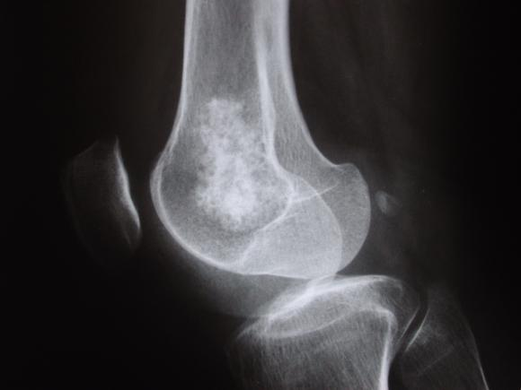 Medical Pictures Info – Chondrosarcoma