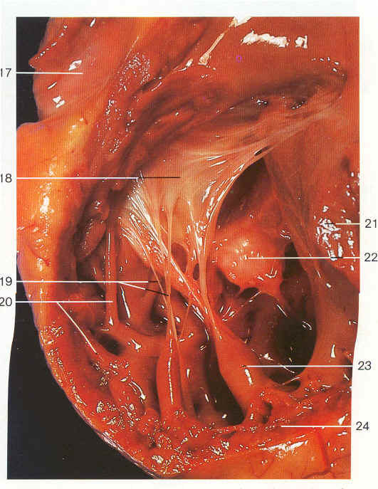 medical pictures info – chordae tendineae, Human Body