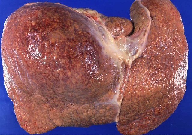 best treatment for alcoholic fatty liver