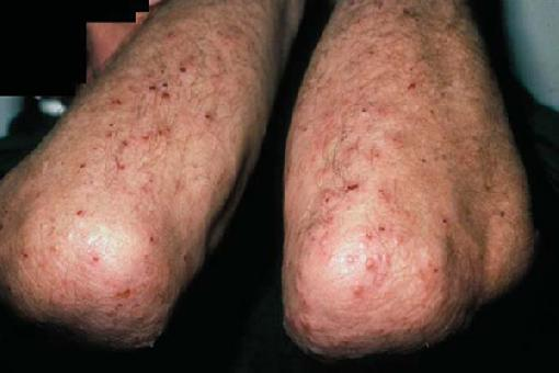 dermatitis herpetiformis treatment