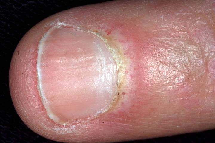 dermatomyositis #10