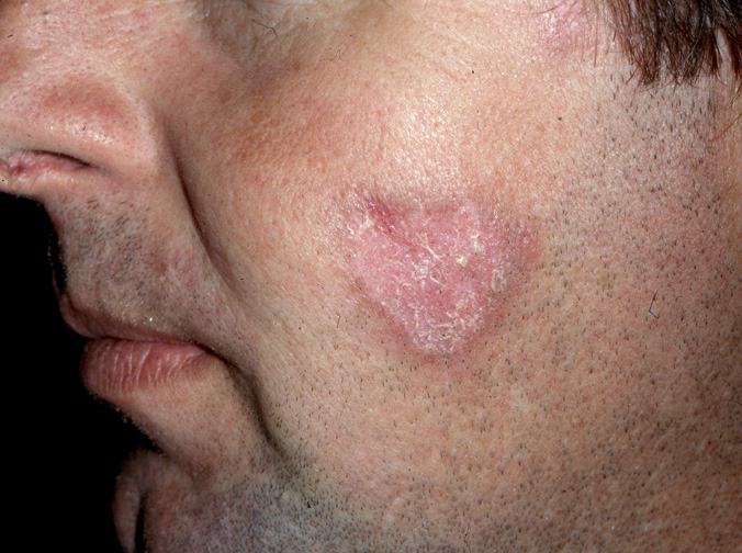 Discoid Lupus Pictures, Images & Photos | Photobucket