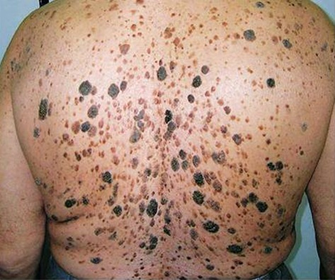 medical pictures info – guttate psoriasis, Skeleton