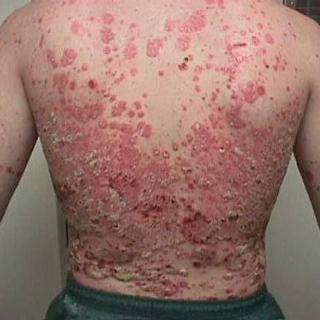 Guttate psoriasis is a form of the condition that is triggered by a bacterial infection 3