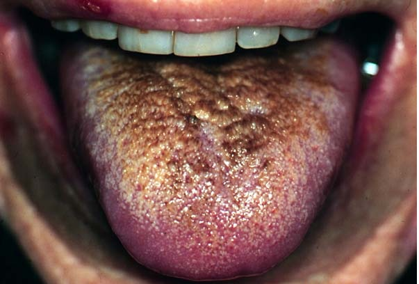 Medical pictures info hairy tongue