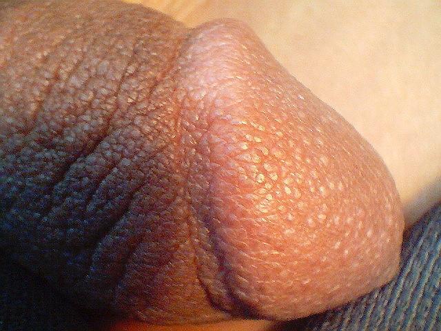 Lichen nitidus Symptoms - Mayo Clinic