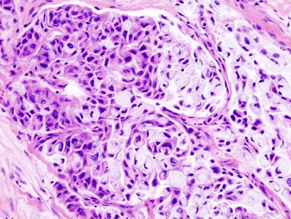 Medical Pictures Info – Mucoepidermoid Carcinoma Lyme Disease Symptoms Rash