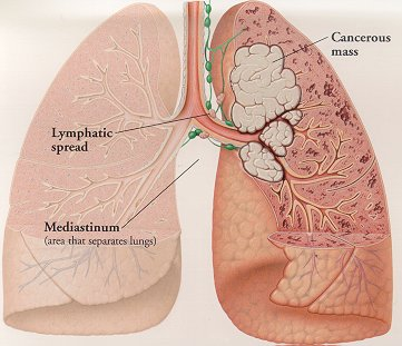 Lung Cancer Prognosis - Signs and Symptoms That Should Alert You