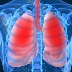 Oat Cell Lung Cancer