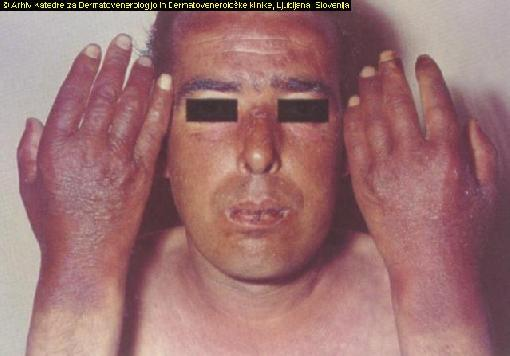 scaly skin disease - pictures, photos