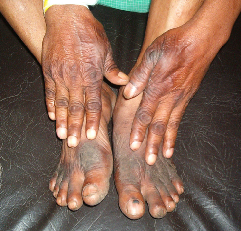 pellagra disease