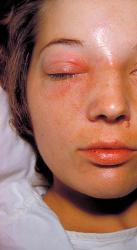 Cellulitis nose periorbital cellulitis