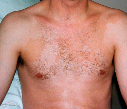 Medical Pictures Info – Pityriasis Versicolor