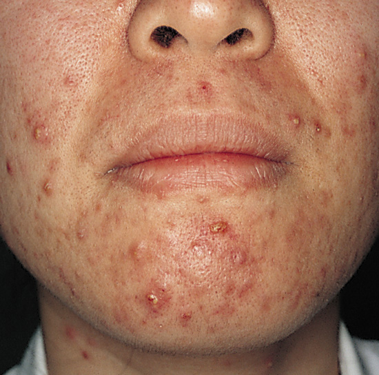 medical pictures info – pustules, Skeleton