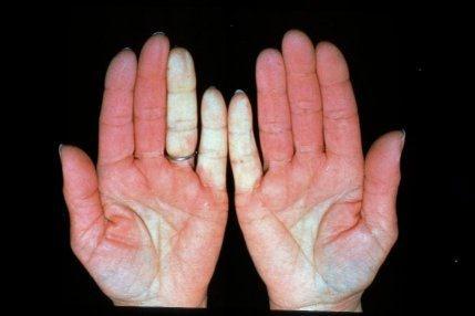 Natural Treatment For Als Disease