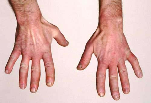 Medical Pictures Info Raynaud S