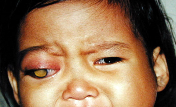 medical pictures info � retinoblastoma