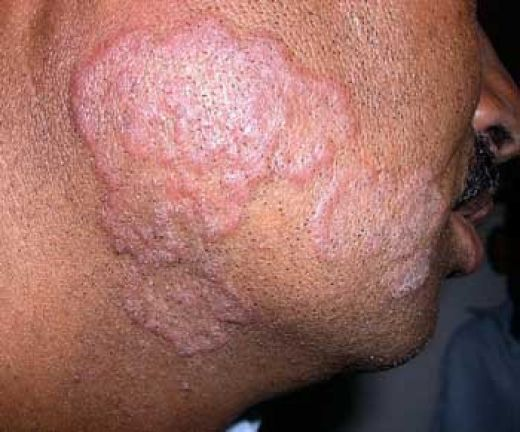 Ringworm of the Skin-Topic Overview - WebMD