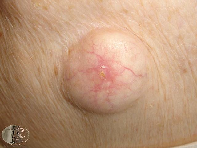 Sebaceous Cyst On Dog
