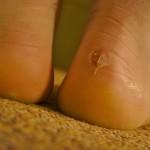 Skin Blister