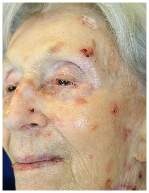 Facial skin cancer photos