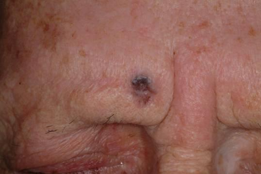 Medical Pictures Info – Skin Cancer Face