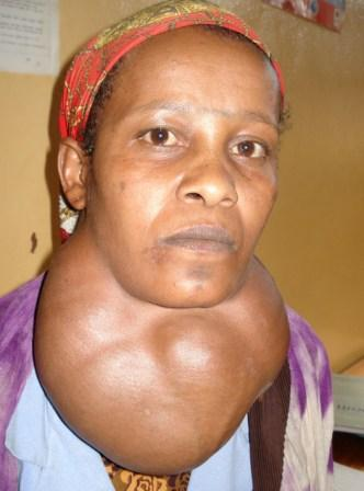 Image result for goiter