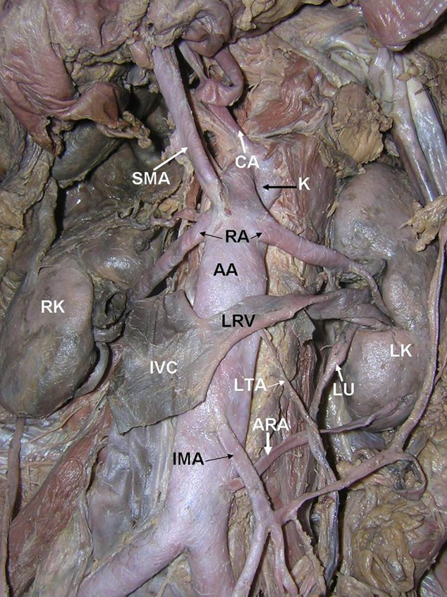 Imv and left renal vein via the left gonadal vein images frompo