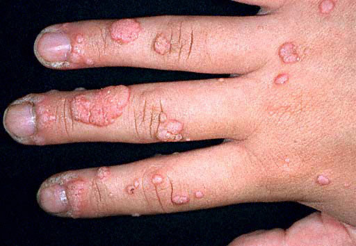 how to get rid of herpes on finger