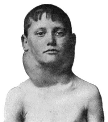 hodgkins
