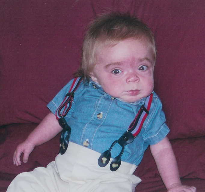 Medical Pictures Info – Hurler Syndrome
