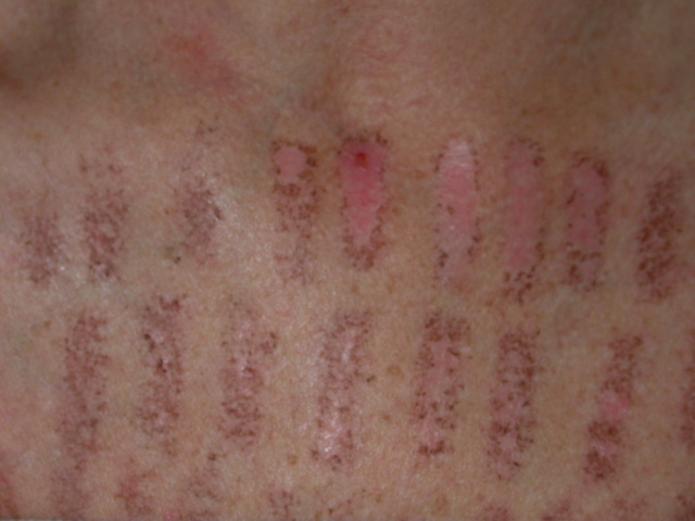 hypopigmentation skin - pictures, photos