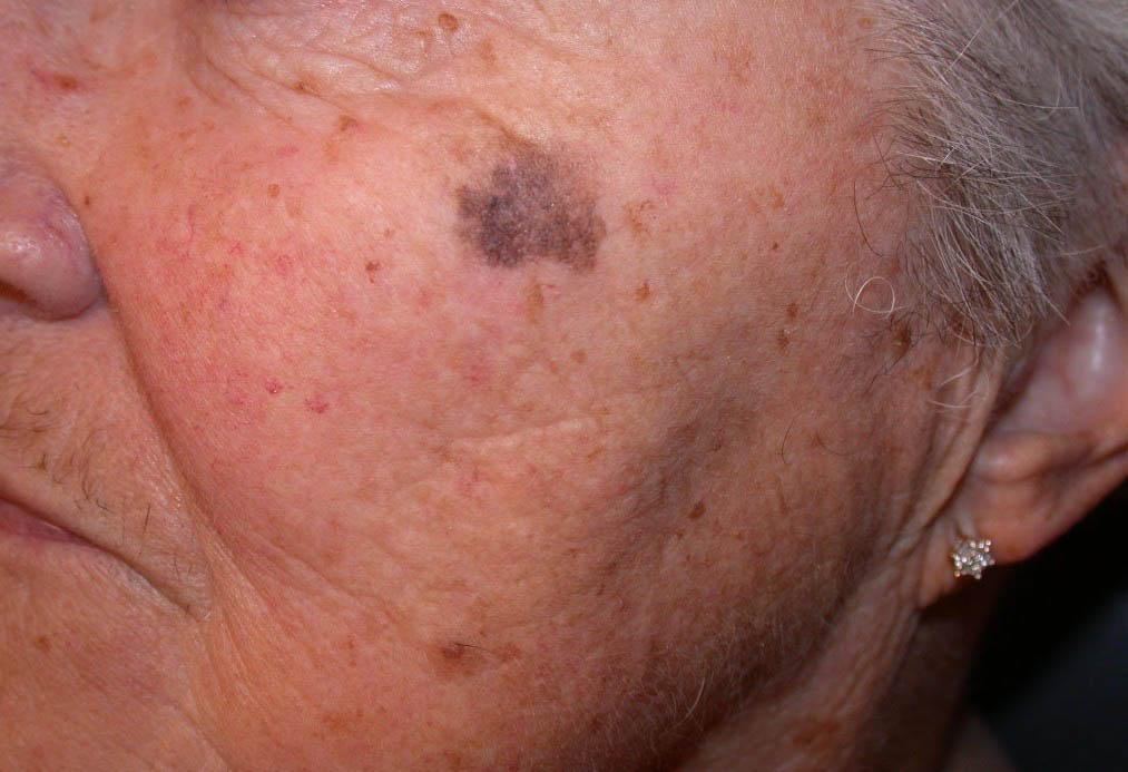 lentigo maligna melanoma pictures