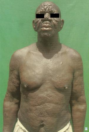 Leprosy Symptoms diagnosis and treatment